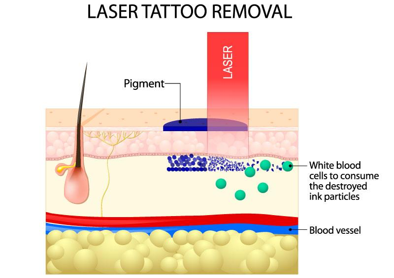 Illustration of Laser Tattoo Removal