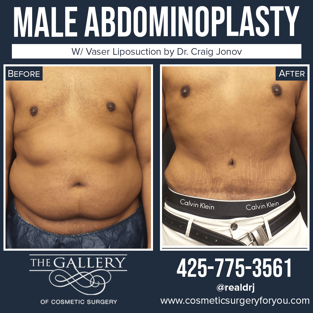A Before and After Photo of a Male Abdominoplasty Surgery By Dr. Craig Jonov