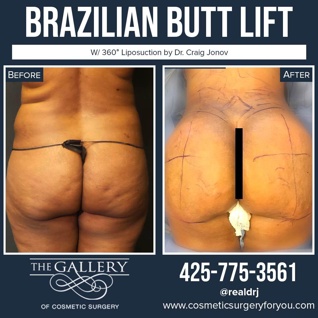 A Before and After photo of a Brazilian Butt Lift Plastic Surgery With Liposuction by Dr. Craig Jonov