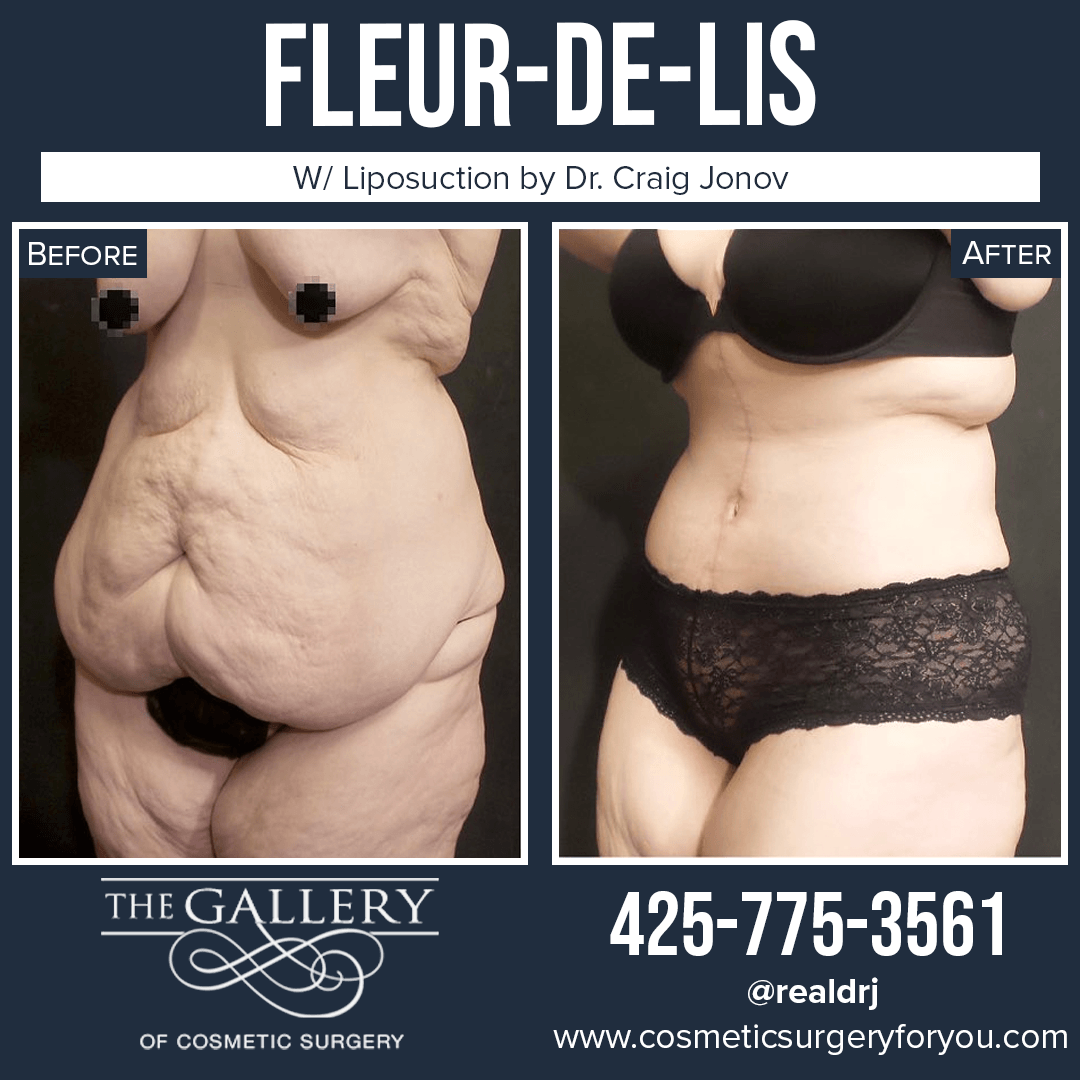 A Before and After Photo of a Fleur-De-Lis Surgery By Dr. Craig Jonov