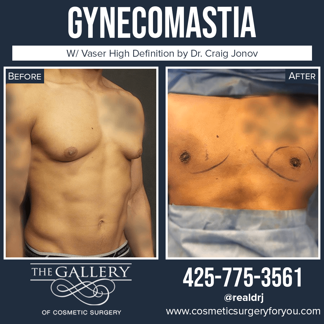 A Before and After Photo of a Surgery for Gynecomastia By Dr. Craig Jonov