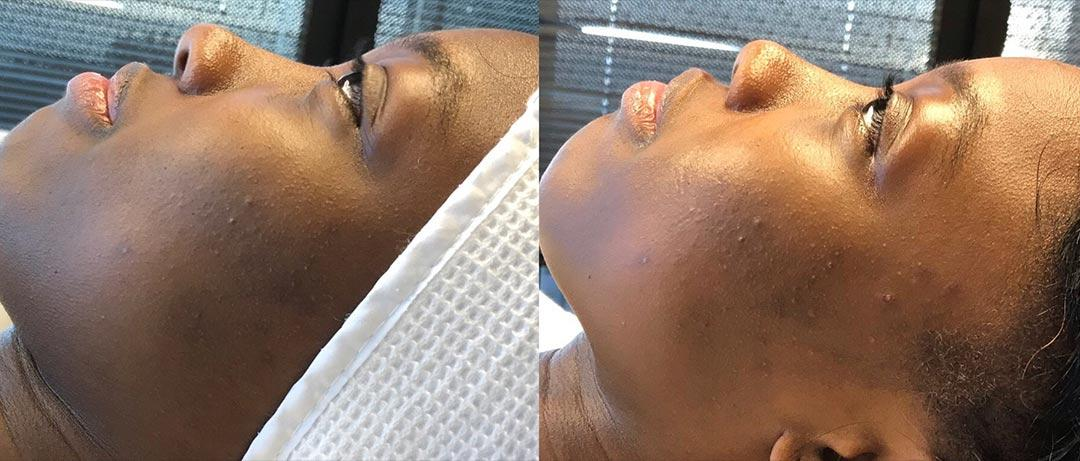 A Before and After Image Of a Patient Who Received a Dermaplaning Procedure At The Gallery of Cosmetic Surgery