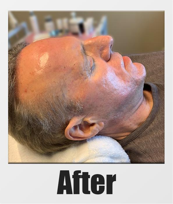 An After Photo of a patient who received a microneedling session in Kirkland Seattle Bellevue