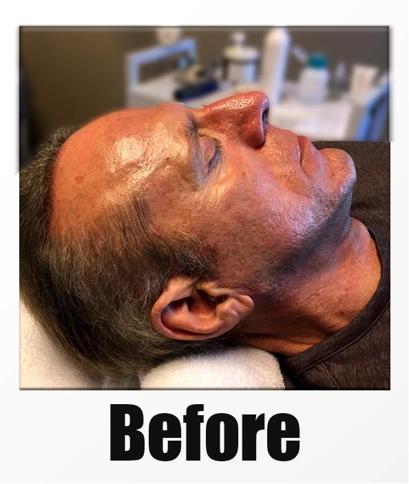 A Before Photo of a patient about to receive a microneedling + PRP session in Kirkland Seattle Bellevue