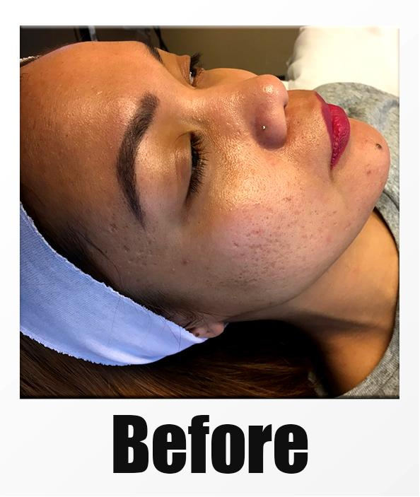 A Before Photo of a patient about to receive a microneedling session in Kirkland Seattle Bellevue