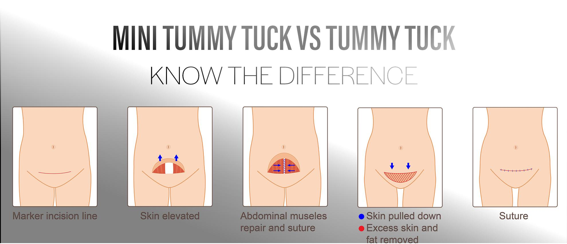 What's The Difference Between A Mini and Full Tummy Tuck?