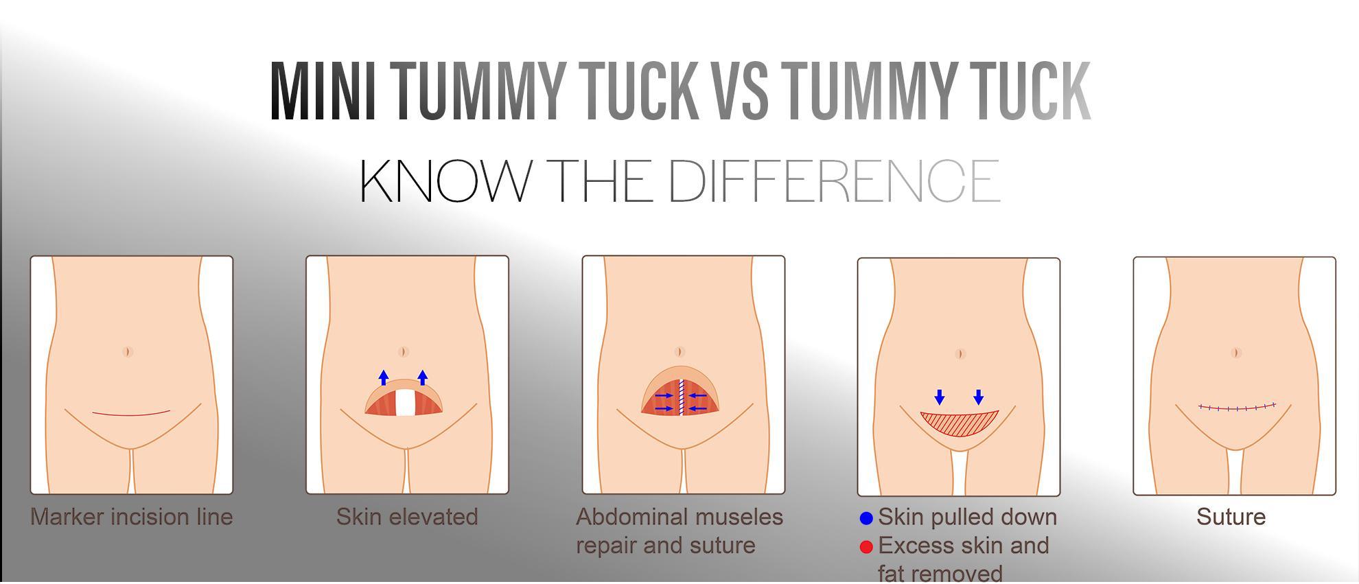 Mini Tummy Tuck Surgery in Bellevue graphic