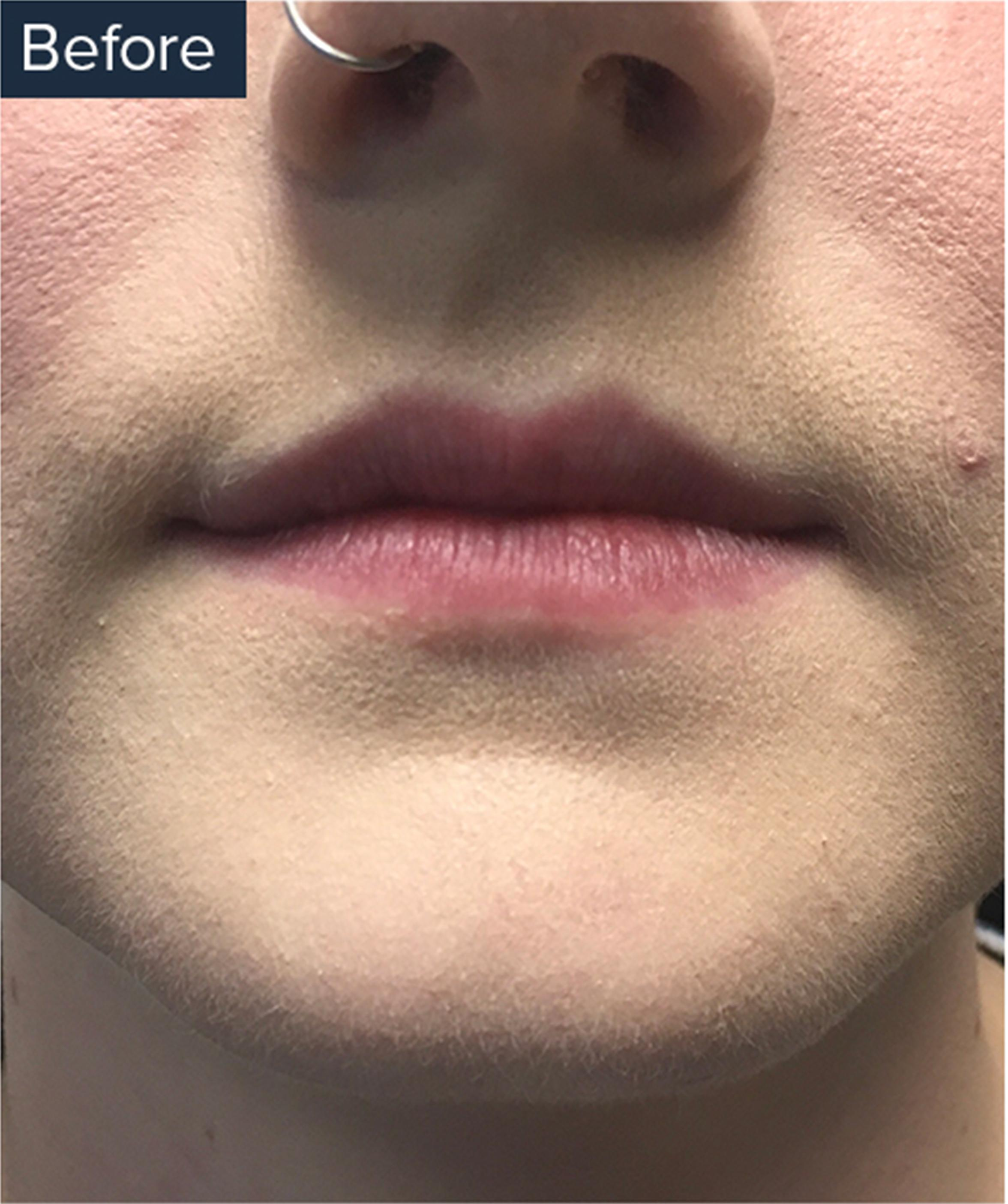 A Before Image Of A Patient Who Received Lip Injections