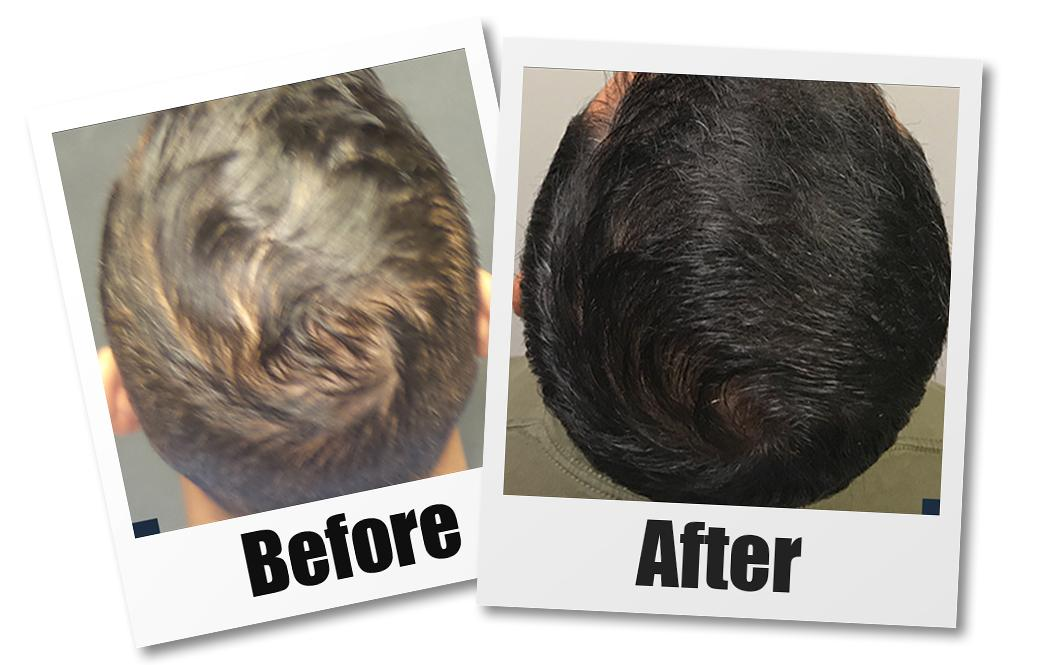 A before and after of a patient who received PRP hair loss treatment