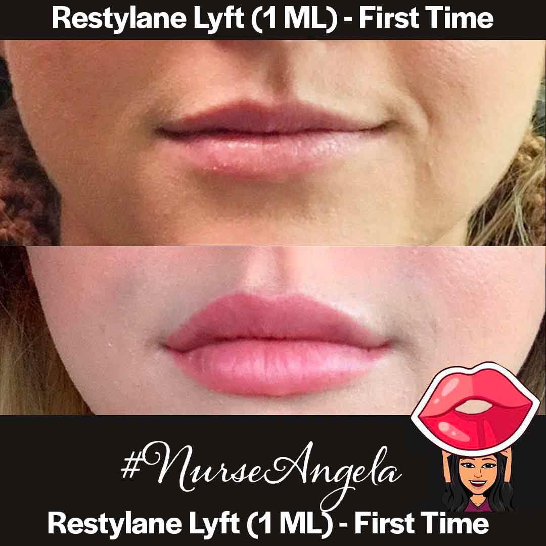 A Before and after set of photos of a patient who received a restylane treatment