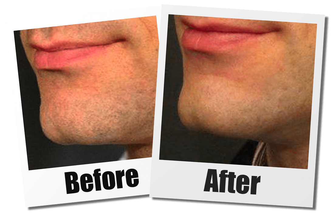 A Before and After Set of Images of A Patient Who Received a Chin Augmentation Plastic Surgery