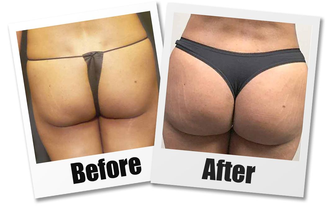 A Before & After set of photos of a patient who received a brazilian butt lift