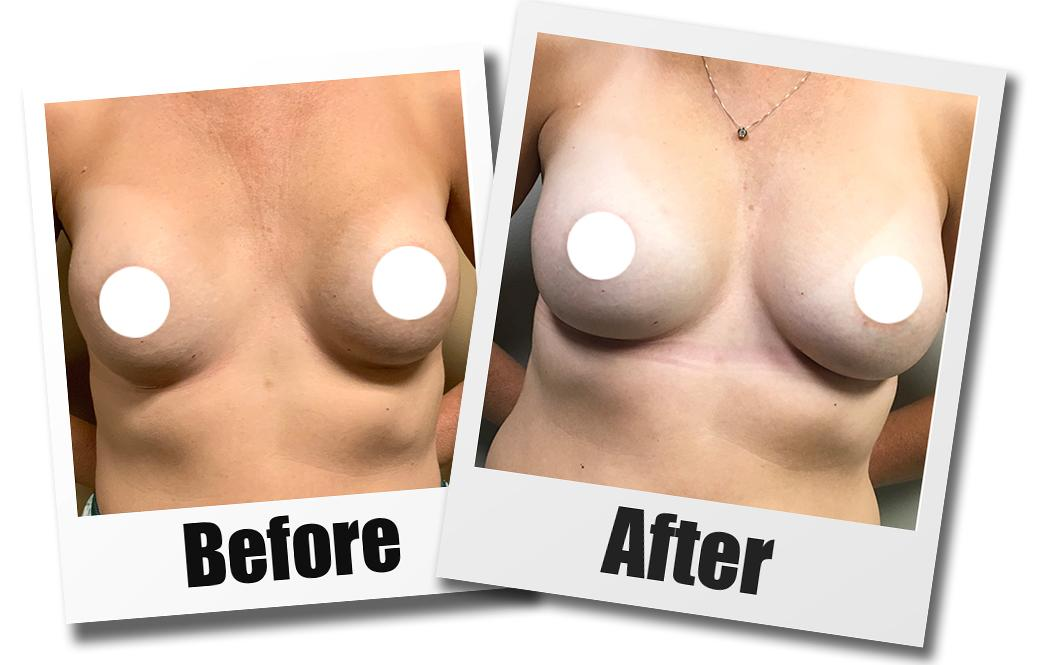 A Before and After Set of Images of A Patient Who Received a Breast Revision Plastic Surgery