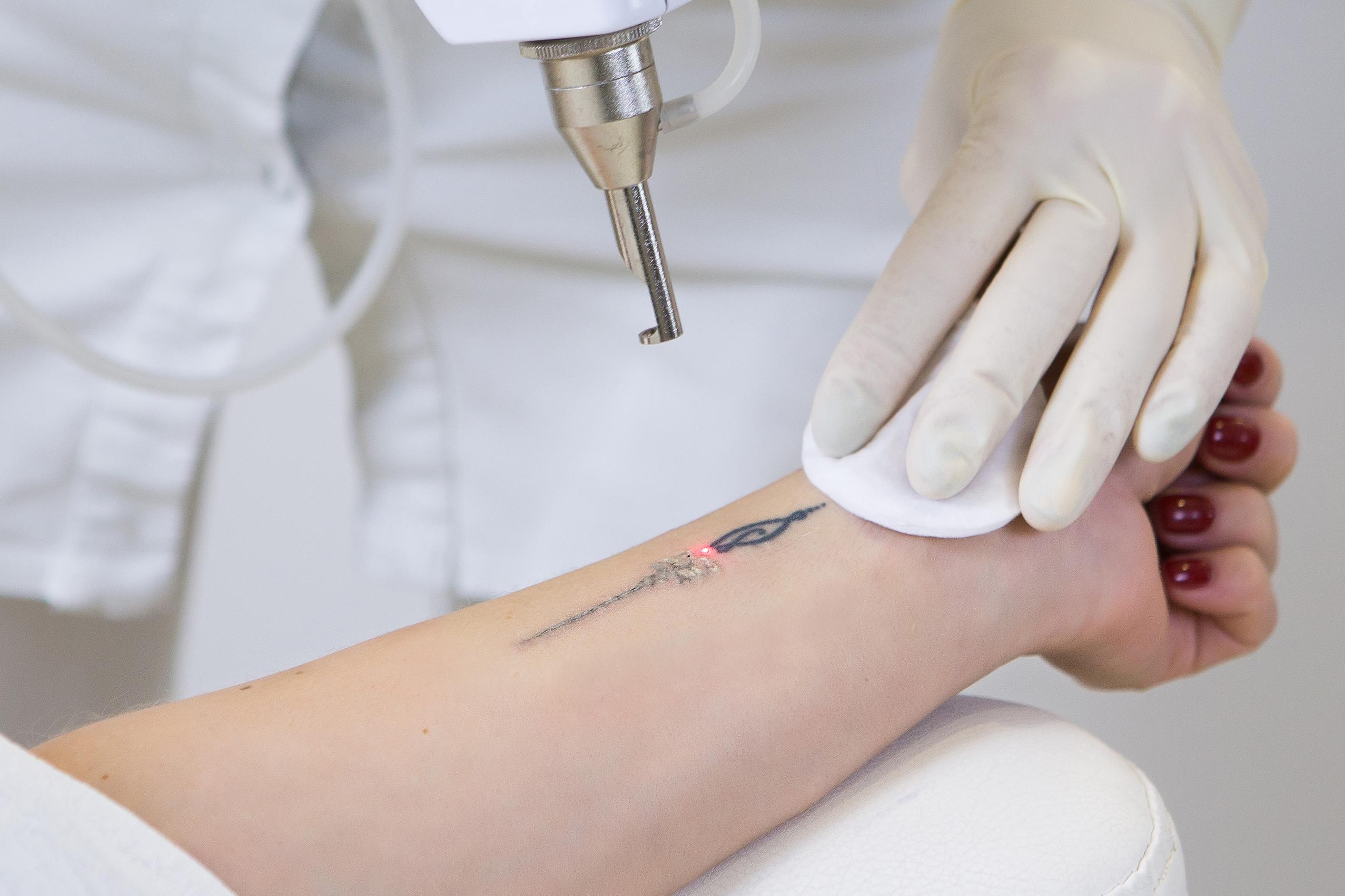 Laser Tattoo Removal in Seattle, Bellevue, and Kirkland