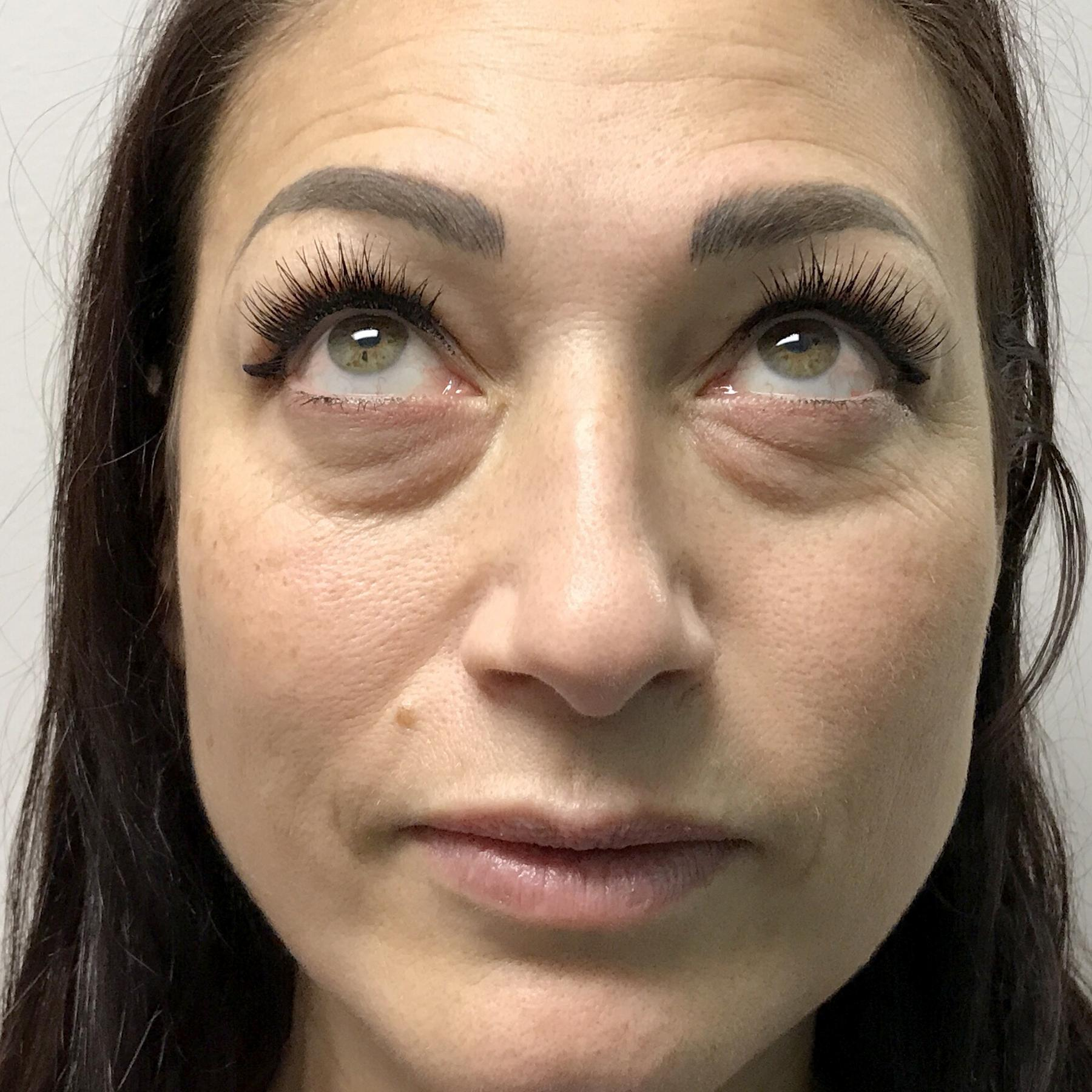 A Before photo of Tear Trough Filler Injections in Seattle, Bellevue, and Kirkland