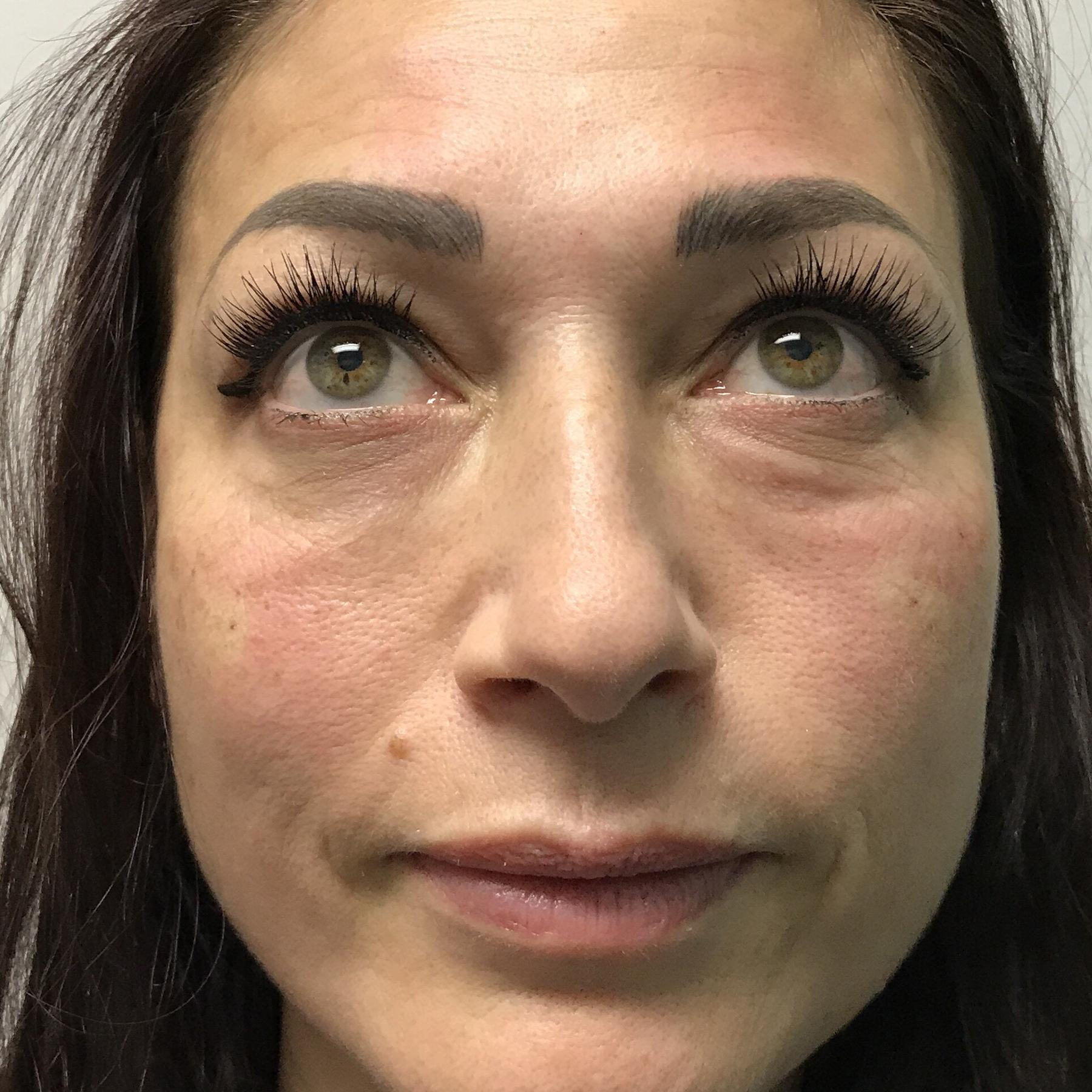 An After photo of Tear Trough Filler in Seattle, Bellevue, and Kirkland