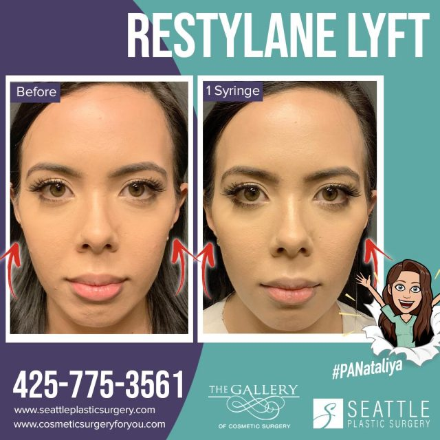 Instagram Before and After photo of cheek filler by PA Nataliya in Seattle, Bellevue, and Kirkland