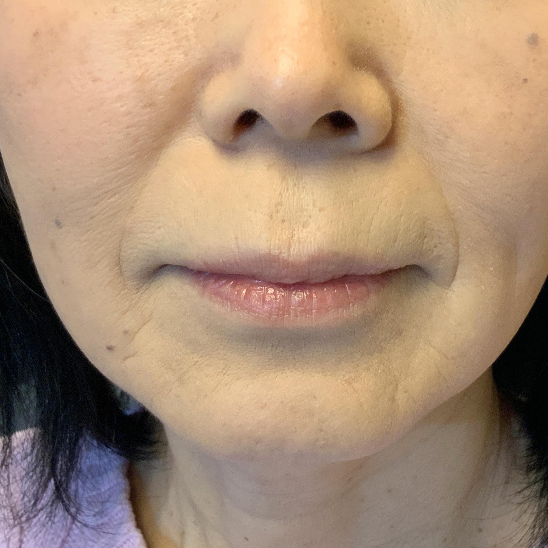 A Before photo of Nasolabial Fold Filler by Injector Nataliya in Seattle, Bellevue, and Kirkland