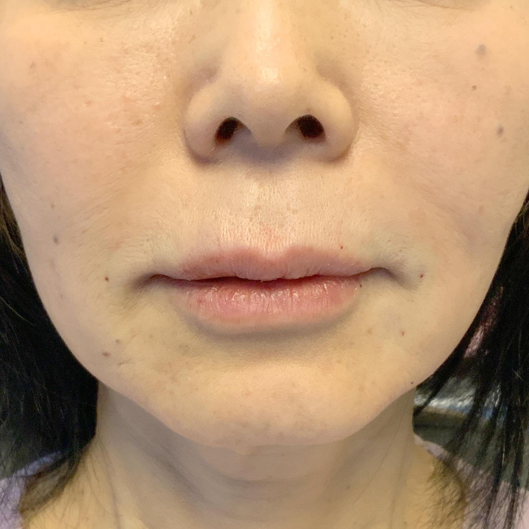 An After photo of Nasolabial Fold Filler by Injector Nataliya in Seattle, Bellevue, and Kirkland