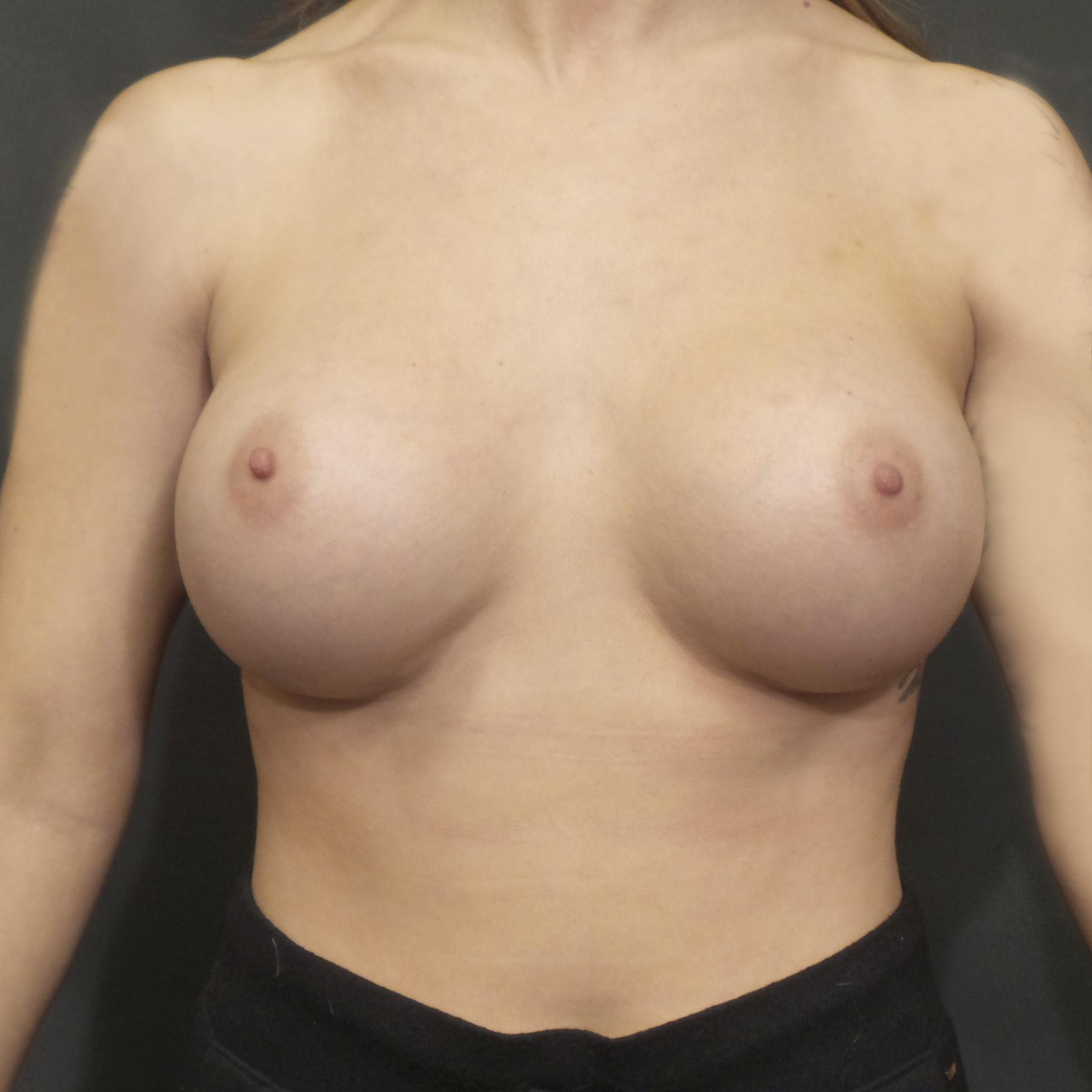 An After photo of a Breast Augmentation Plastic Surgery by Dr. Craig Jonov in Seattle, Bellevue, and Kirkland