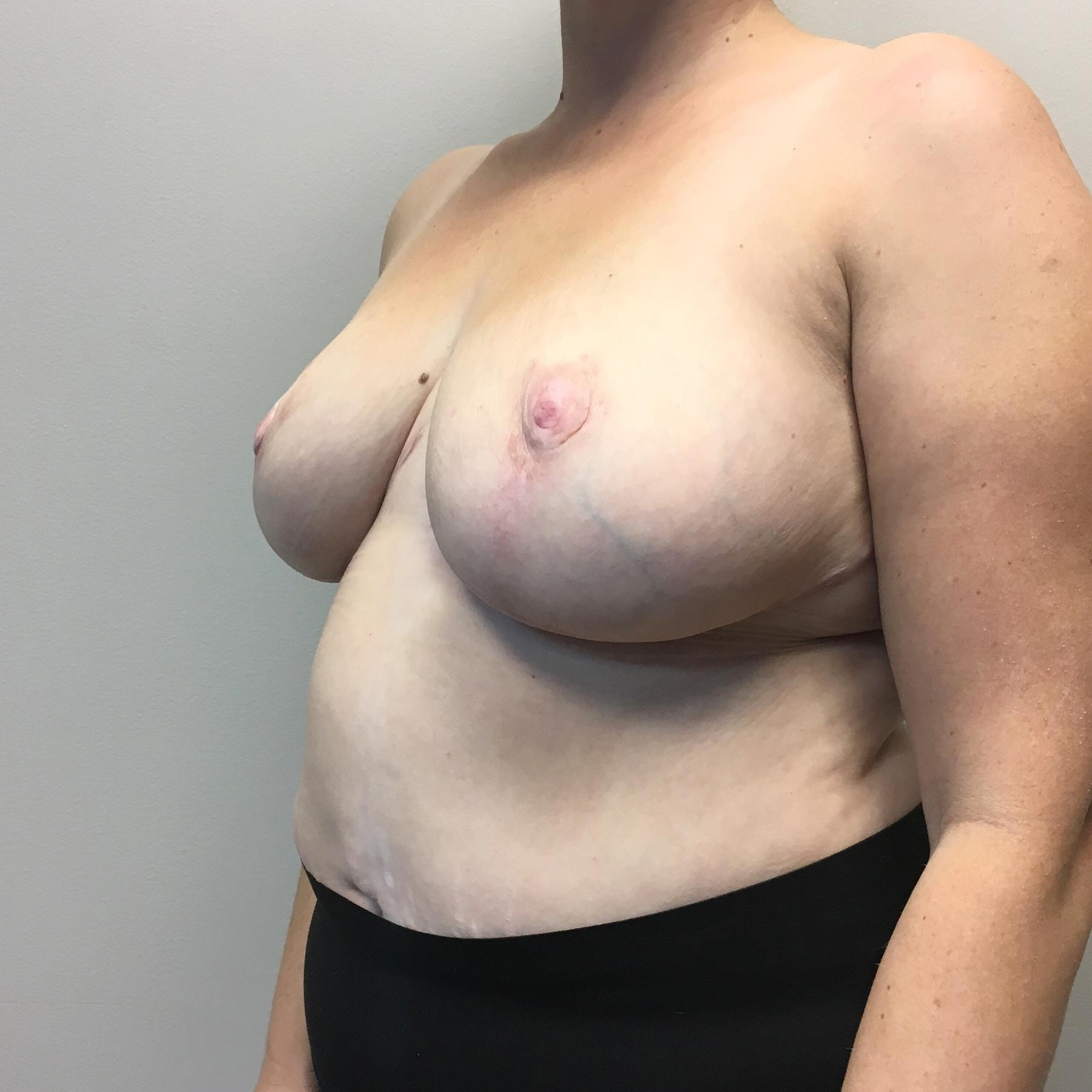 An After photo of a Breast Reduction Plastic Surgery by Dr. Craig Jonov in Seattle, Bellevue, and Kirkland