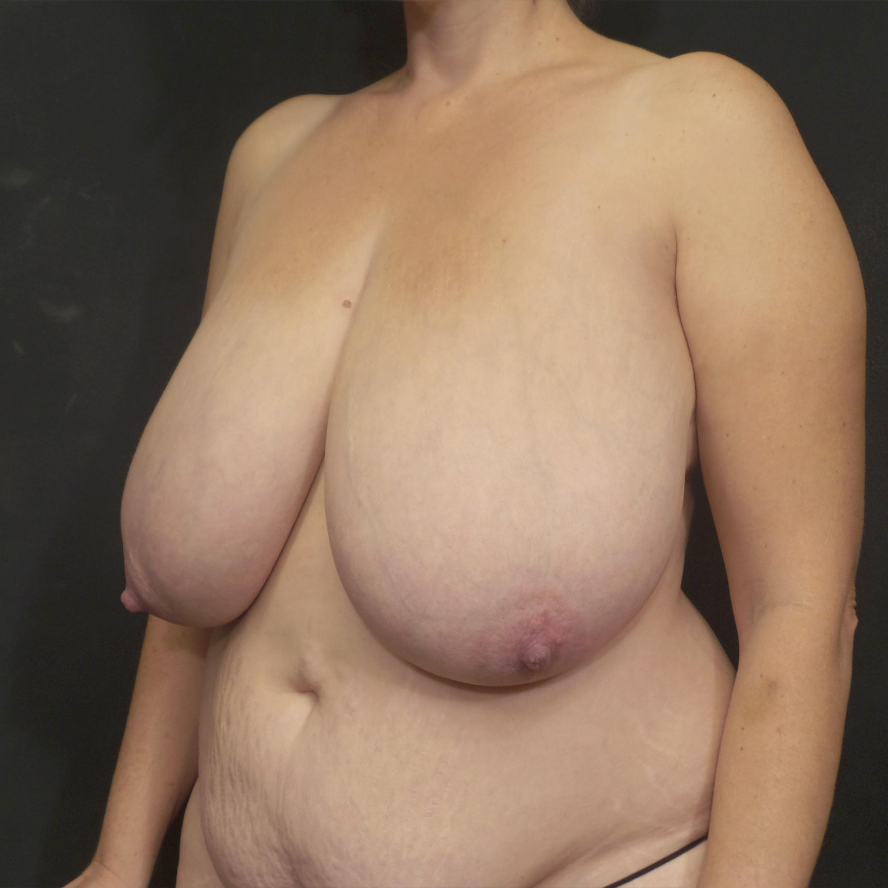A Before photo of a Breast Reduction Plastic Surgery by Dr. Craig Jonov in Seattle, Bellevue, and Kirkland