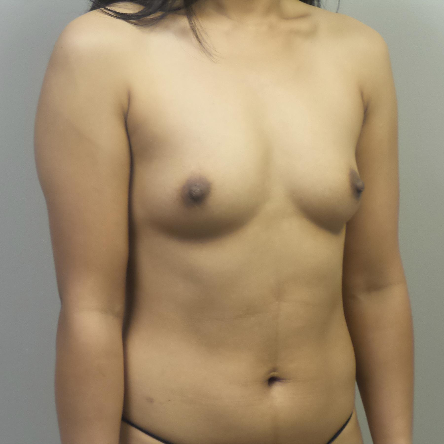 A Before photo of a Breast Augmentation Plastic Surgery by Dr. Craig Jonov in Seattle, Bellevue, and Kirkland