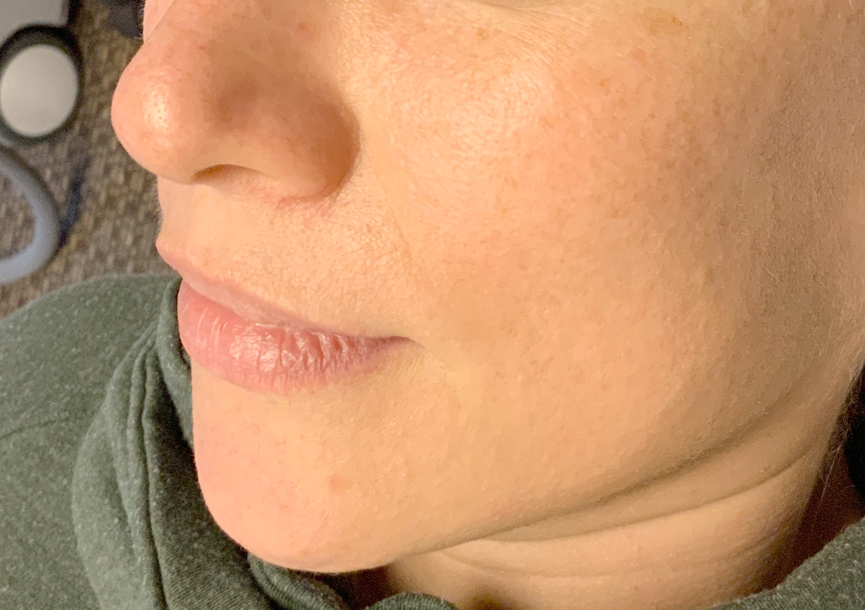 An After photo of the Glow Up Package by Master Esthetician Kyla in Seattle, Bellevue, and Kirkland