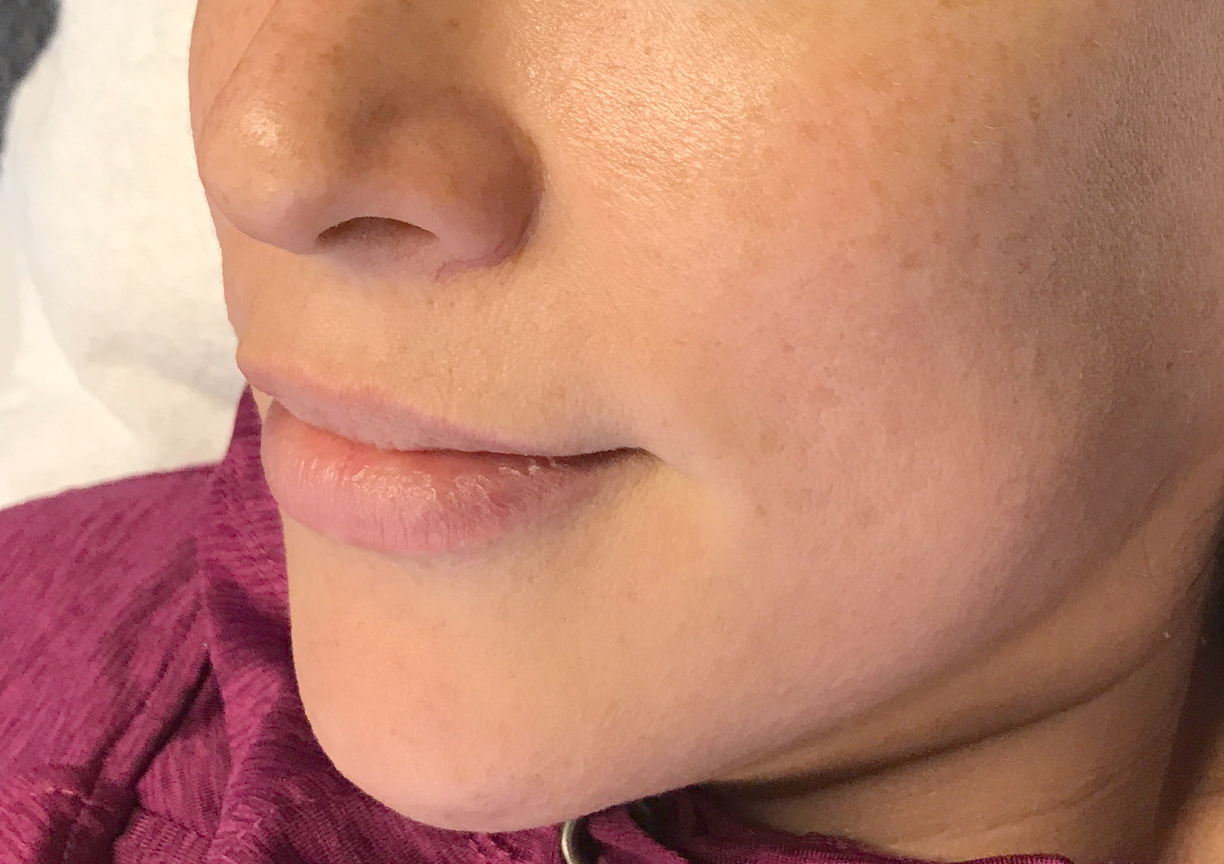 A Before photo of the Glow Up Package by Master Esthetician Kyla in Seattle, Bellevue, and Kirkland