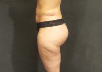 Non-Surgical Brazilian Butt Lift