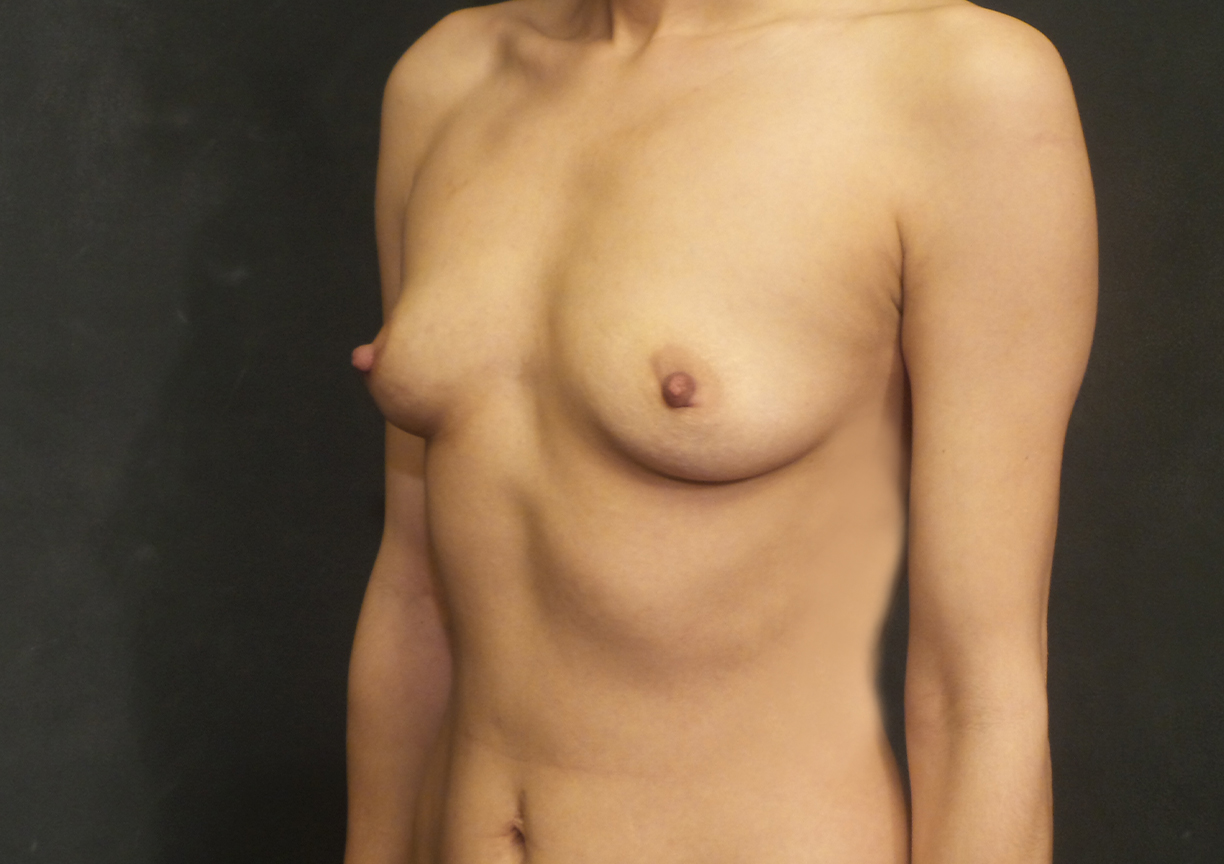 A Before photo of a Breast Augmentation Plastic Surgery by Dr. Craig Jonov in Bellevue, Kirkland, and Lynnwood