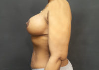 Breast Augmentation with Lift