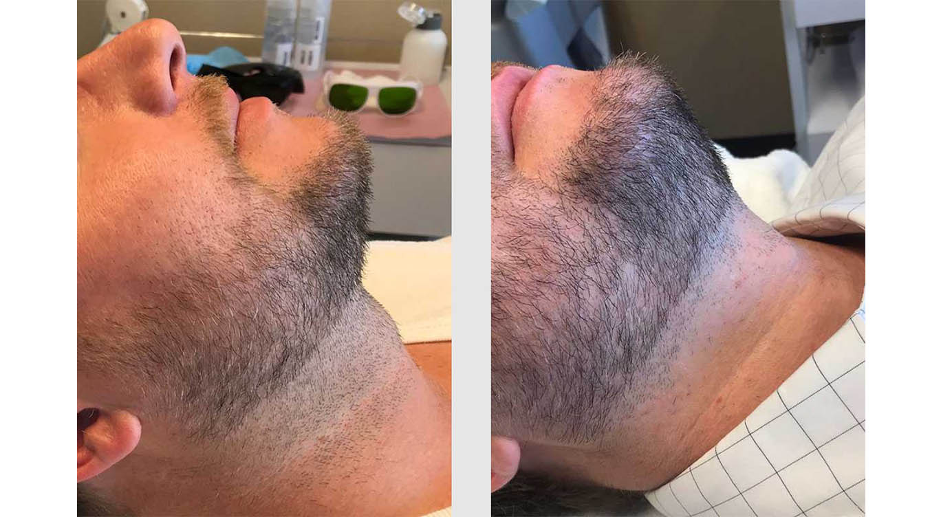 A Before and After photo of Laser Hair Removal by Master Estheticians in Bellevue, Kirkland, and Lynnwood.