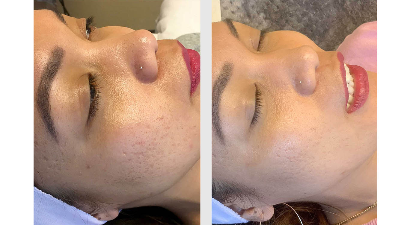 A Before and After photo of Microneedling by Master Estheticians at The Gallery of Cosmetic Surgery in Bellevue, Kirkland, and Lynnwood.