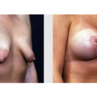 A Before and After photo of a Breast Lift Plastic Surgery by Dr. Craig Jonov in Bellevue, Kirkland, and Lynnwood.