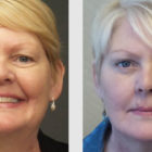 A Before and After photo of an Eyelid Lift Plastic Surgery by Dr. Craig Jonov in Bellevue, Kirkland, and Lynnwood.