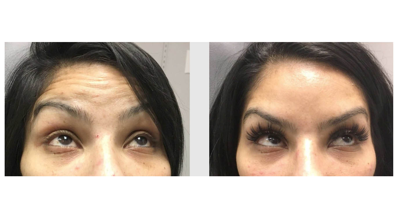 A Before and After photo of BOTOX injections at The Gallery of Cosmetic Surgery in Bellevue, Kirkland, and Lynnwood.