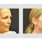 A Before and After photo of a Facelift Plastic Surgery by Dr. Craig Jonov in Bellevue, Kirkland, and Lynnwood.