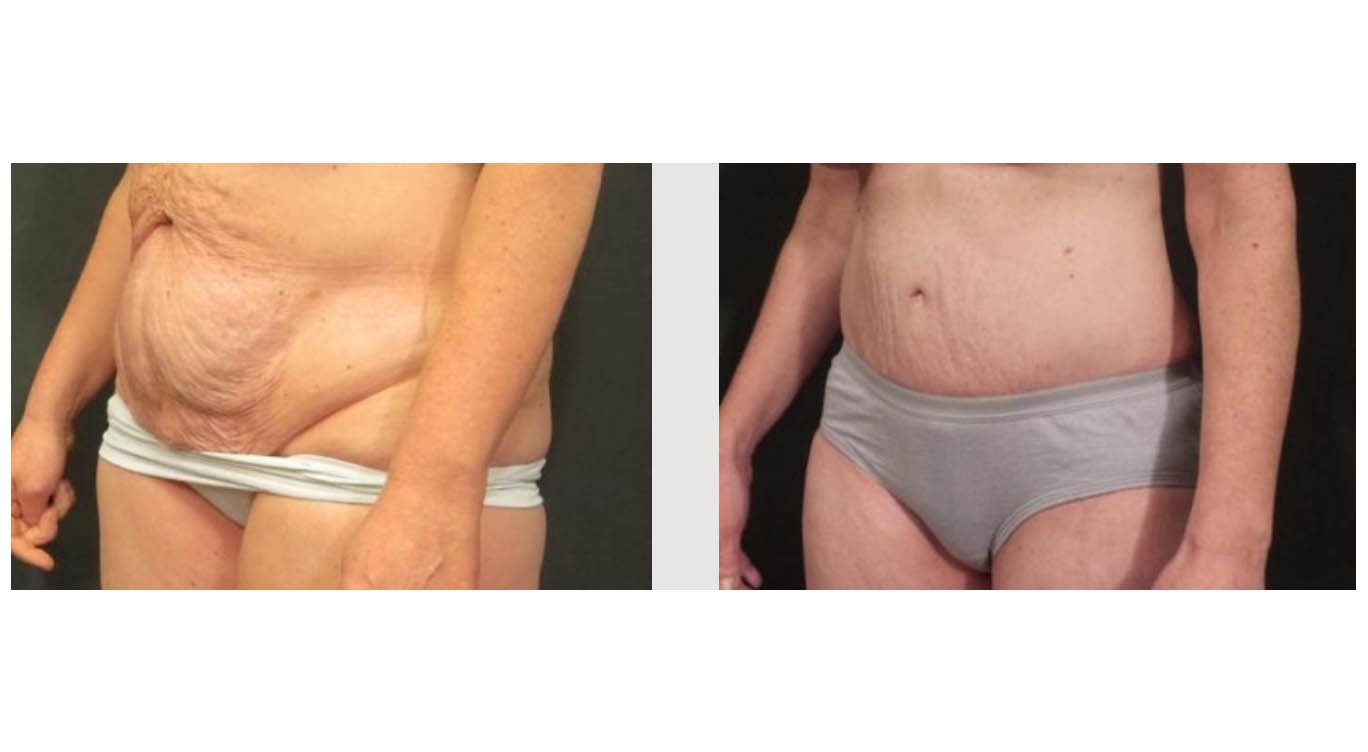 A Before & After Photo of a Mons Pubis Lift by Dr. Craig Jonov in Bellevue and Kirkland