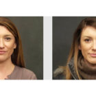 A Before and After photo of a Nose Job Plastic Surgery by Dr. Craig Jonov Bellevue, Kirkland, and Lynnwood.