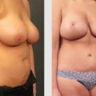 A Before and After photo of a Mommy Makeover Plastic Surgery by Dr. Craig Jonov in Bellevue, Kirkland, and Lynnwood.