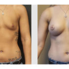 A Before and After photo of a Breast Augmentation Plastic Surgery by Dr. Craig Jonov in Bellevue, Kirkland, and Lynnwood.