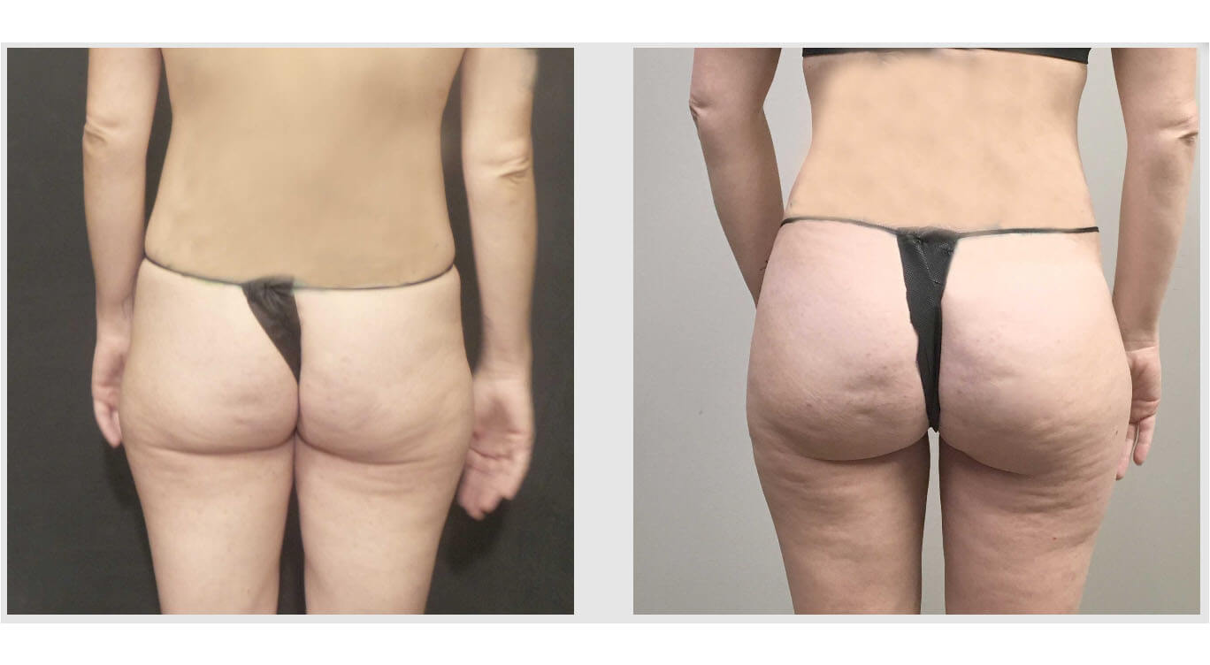 A Before and After photo of a Brazilian Butt Lift Plastic Surgery by Dr. Craig Jonov in Bellevue, Kirkland, and Lynnwood
