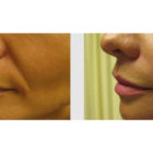 A Before and After photo of Filler injections at The Gallery of Cosmetic Surgery in Bellevue, Kirkland, and Lynnwood.