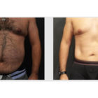 A Before and After photo of a Tummy Tuck Plastic Surgery by Dr. Craig Jonov in Bellevue, Kirkland, and Lynnwood.