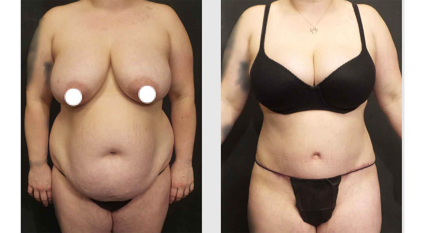 A Before and After photo of an Extended Tummy Tuck Plastic Surgery by Dr. Craig Jonov in Bellevue, Kirkland, and Lynnwood.