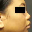 A Before and After photo of a Non-Surgical Nose Job by Dr. Craig Jonov in Bellevue, Kirkland, and Lynnwood.