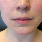 A Before and After photo of Restylane Silk Filler at The Gallery of Cosmetic Surgery in Bellevue, Kirkland, and Lynnwood.