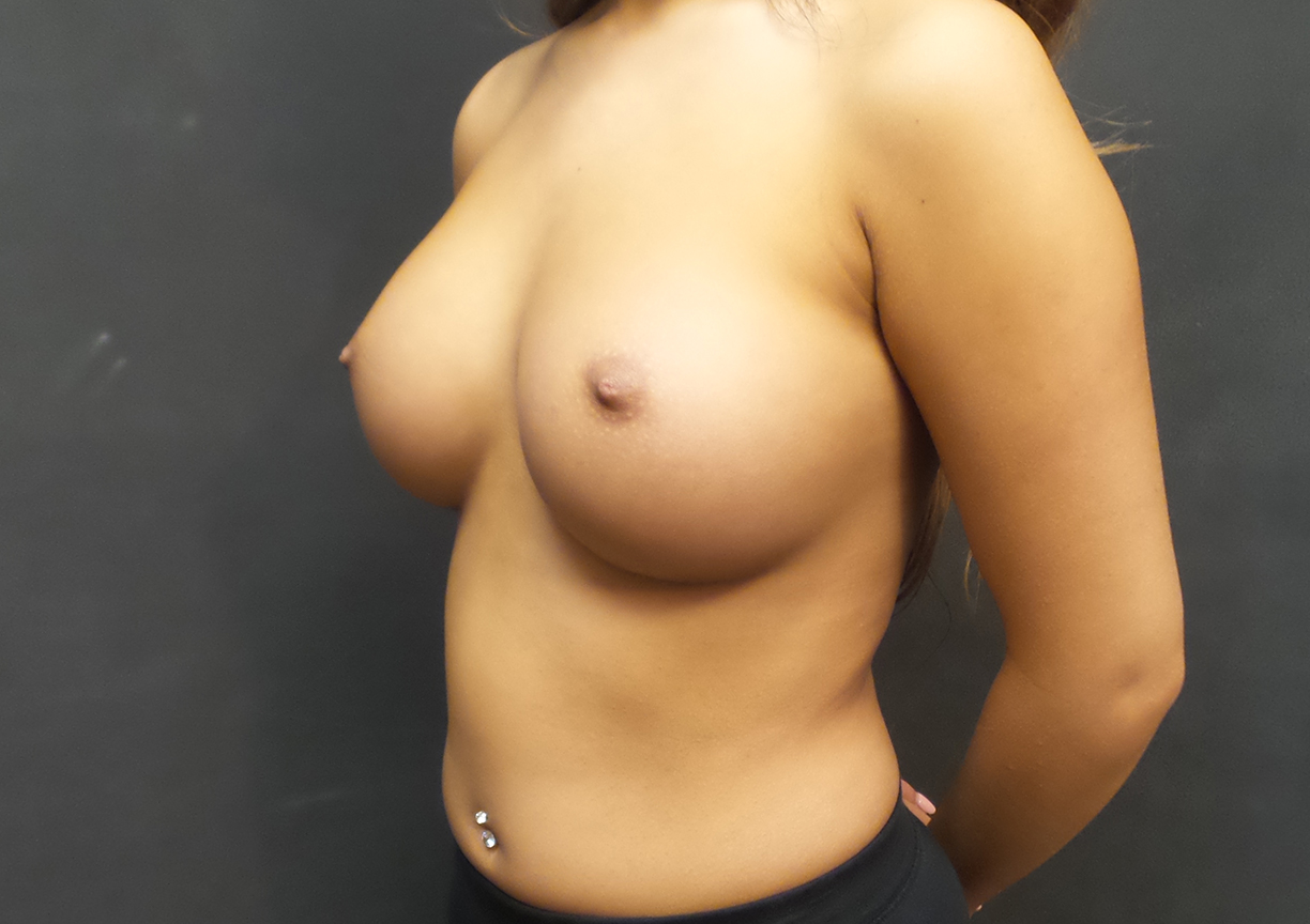 An After Photo of a Breast Augmentation Plastic Surgery by Dr. Craig Jonov in Bellevue, Kirkland, and Lynnwood