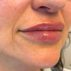 An After Photo of Lip Filler in Bellevue, Kirkland, and Lynnwood